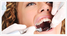 Root Canal Treatment Brampton