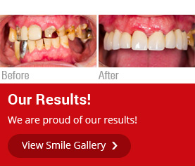 before after dental treatment in Brampton
